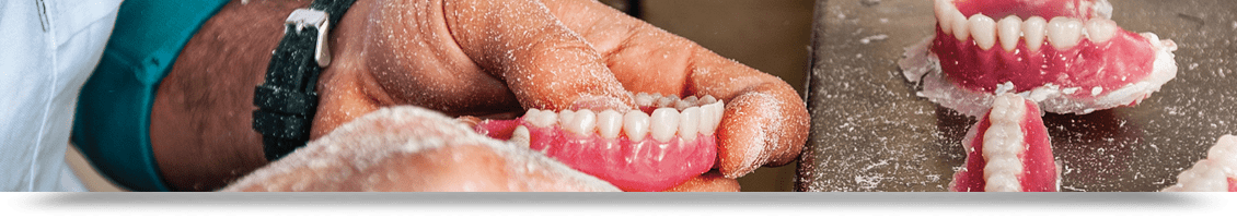 removable restorations page header